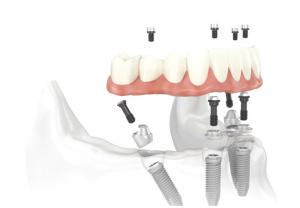 Latest implant technique