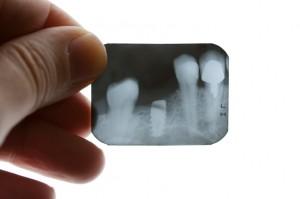 Dental Implants Problems