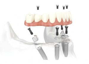 All on 4 Dental Implants FAQ